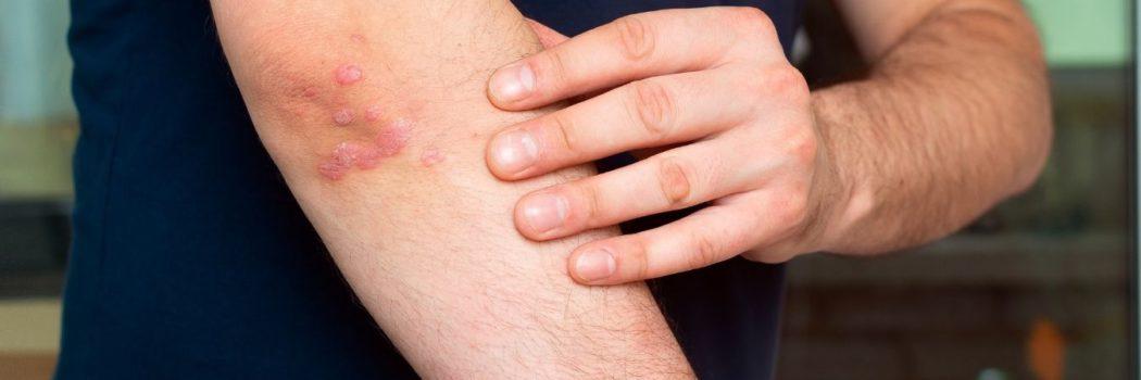 Psoriasi: sintomi, cause e cura