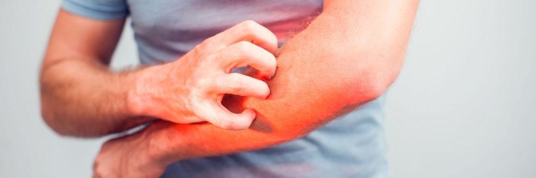 Orticaria: cosa è e come curarla